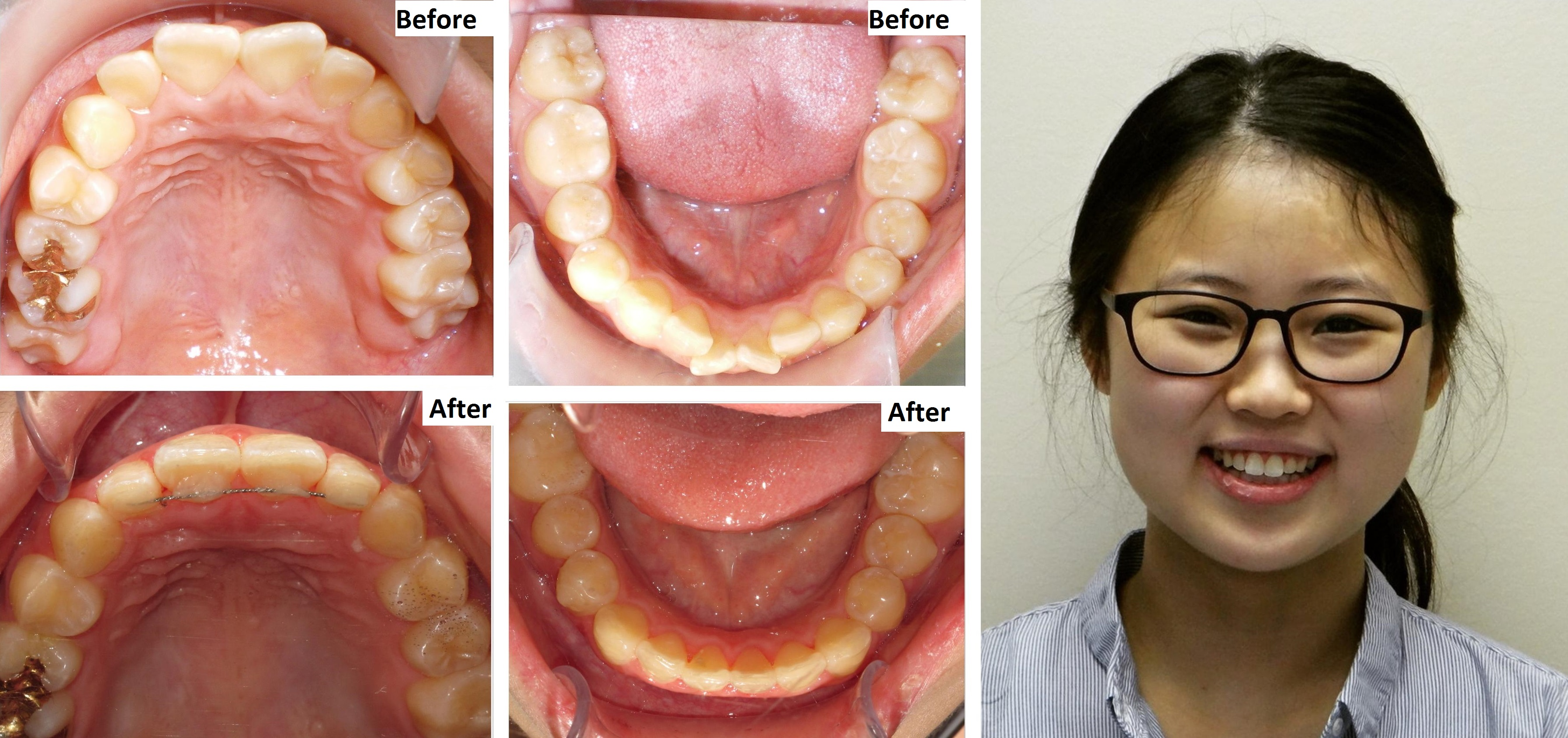 invisalign dentist yonge and lawrence 2
