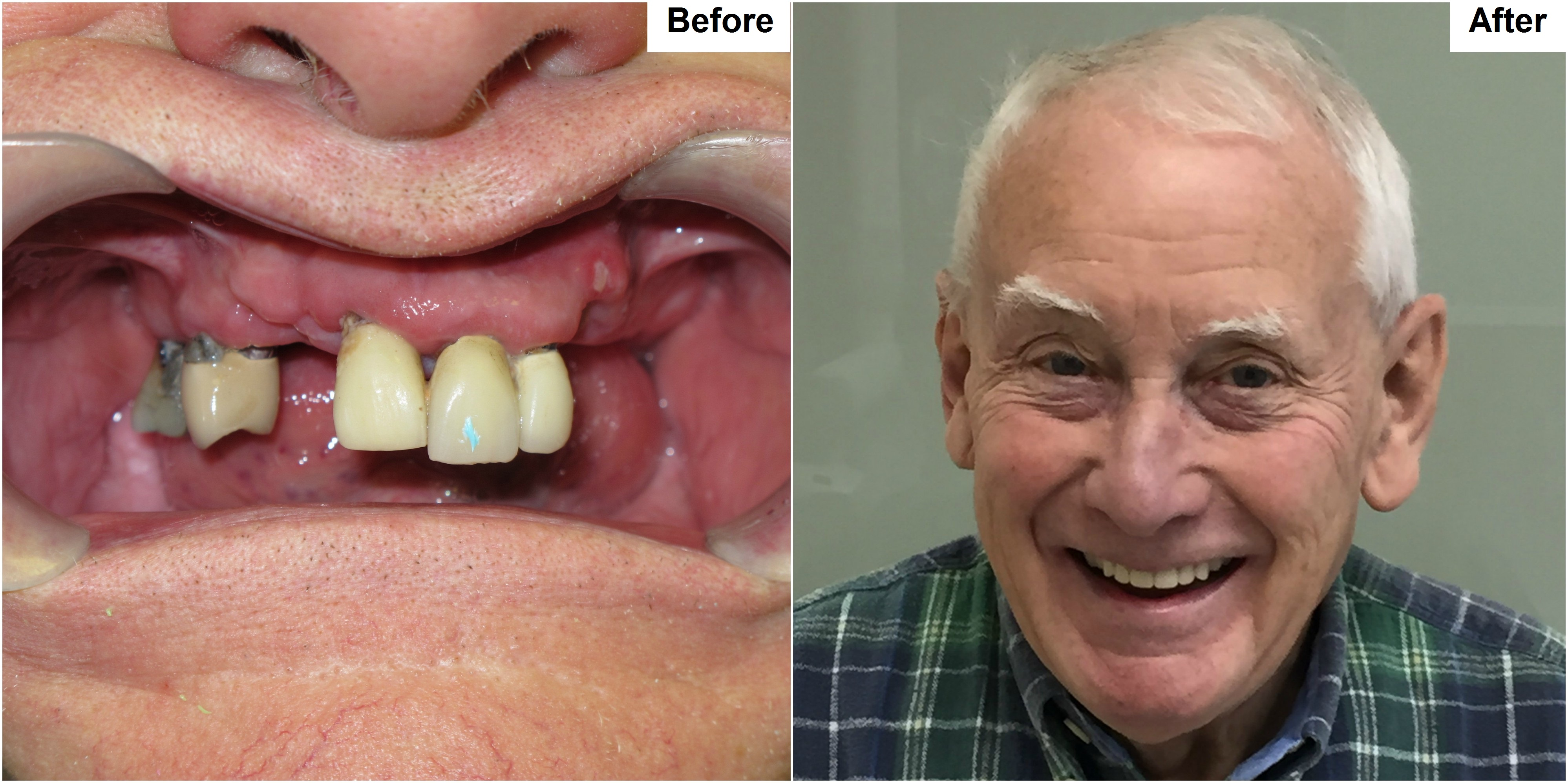 Dental Implant Yonge and Lawrence 2