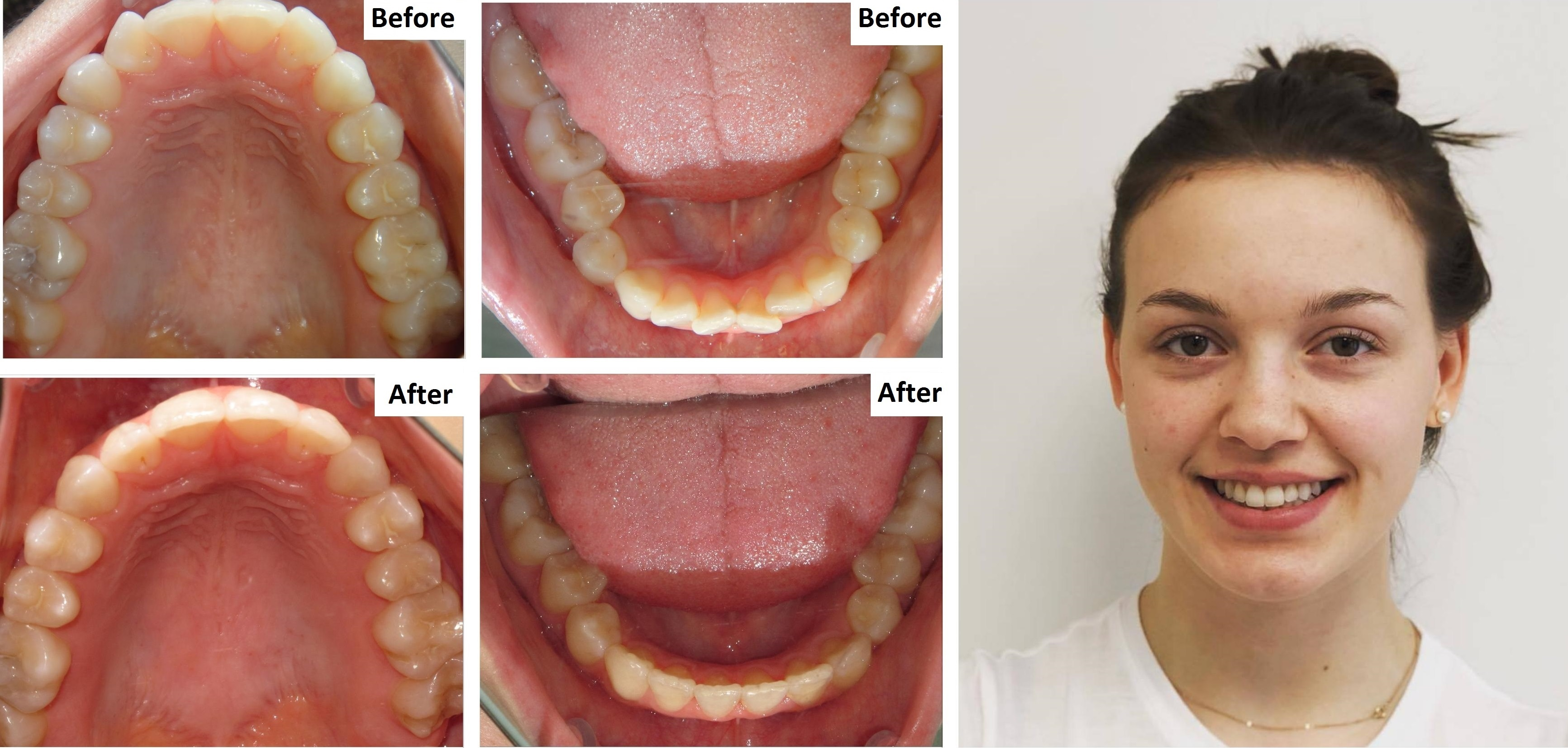 Invisalign Orthodontics located at Yonge and Lawrence