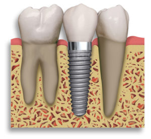 Dental Implant North York