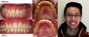 invisalign dentist yonge and lawrence 1