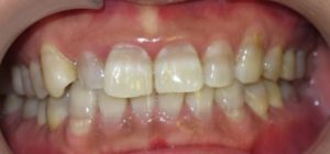Teeth Whitening in North York